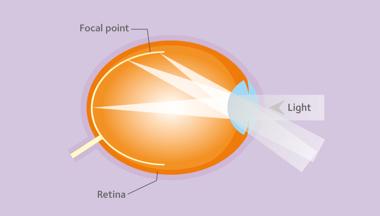 Prise en charge de la myopie versus correction de la myopie